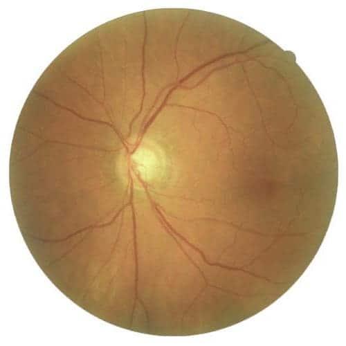 glaucome dr gavrilov ophtalmo paris 7 glaucome traitement